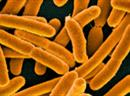 Resistent gegen Antibiotika: E-Coli-Bakterien.